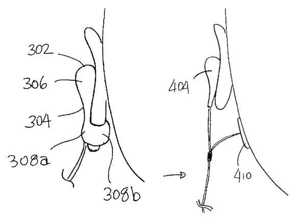"""Eine weitere Patentzeichnung von Apple zeigt eine Art """"Clip"""" welcher das Ohrläppchen umschließt oder einen separaten Sensor an der Gesichtshaut. (Quelle: MacRumors.com)"""