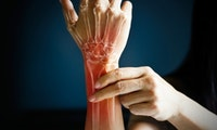 Schluss mit Mausarm: Mit diesen Handübungen beugst du RSI effektiv vor!