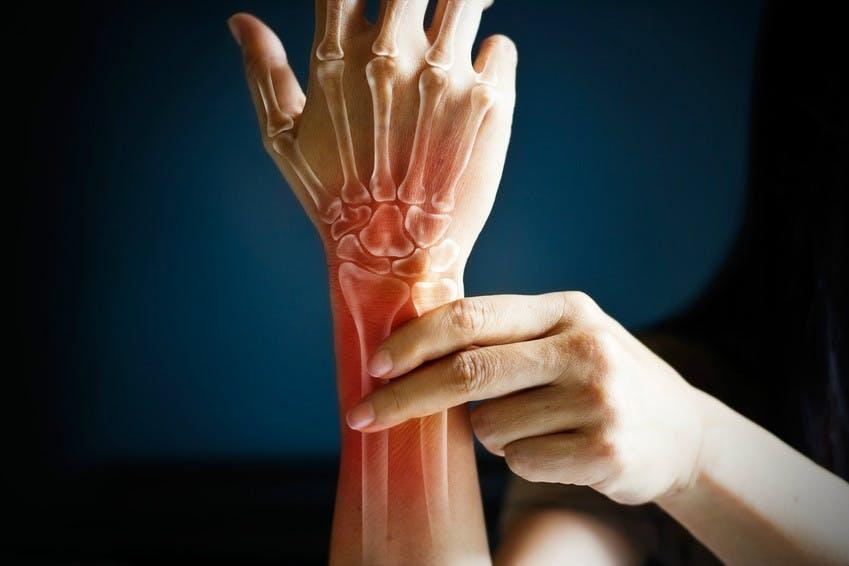 Dehnübungen Gegen Mausarm Repetitive Strain Injury Rsi
