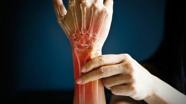 Was tun gegen schmerzen im handgelenk
