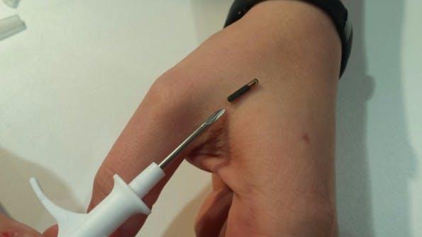 NFC-Chip unter die Haut – klein wie eine Kugelschreiber-Miene. (Bild: t3n.de)