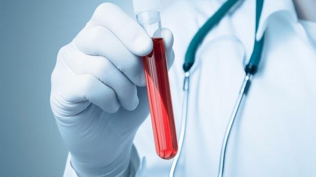 t3n-Daily-Kickoff: Patienten betroffen, Bluttest-Startup Theranos muss nachträglich tausende Bluttests korrigieren