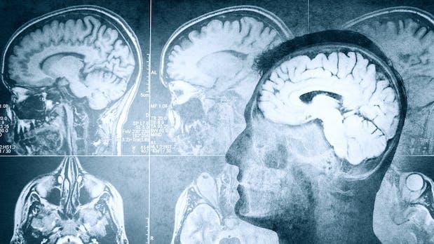 Gadget ins Gehirn transplantiert: Dieses Startup will euer Gedächtnis verbessern