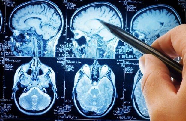 Kernel: Ein Chip im Gehirn soll unser Gedächtnis verbessern. (Foto: Shutterstock)