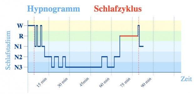 """Hypnogramm mit einem Schlafzyklus – hier folgte nach kurzem """"Wachliegen"""" (W) etwas Leichtschlaf (N1), unterbrochen von erneutem Wachwerden, danach etwas Schlaf der Stadien N2 und ausgiebig Tiefschlaf (N3) sowie 13 Minuten REM-Schlaf (R). (Grafik: Wikipedia)"""