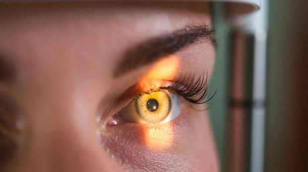 Google-Algorithmus erkennt Herzinfarktrisiko in den Augen