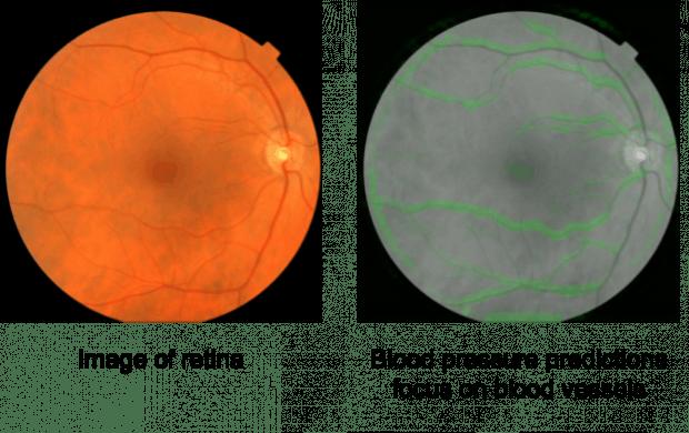 Links zu sehen: Die Netzhaut in Farbe, mit der Makula (dunkler Fleck) in der Mitte und den roten Blutgefäßen auf der rechten Seite. Rechts zu sehen: Eine Schwarz-Weiß-Version, die vom Algorithmus zur Analyse genutzt wird. Grün hervorgehoben sind die Pixel, die der Algorithmus zur Analyse des Blutdrucks nutzt. (Bild: Google)