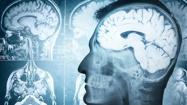 Dieses Startup will dein Gehirn erhalten – und dich dafür umbringen