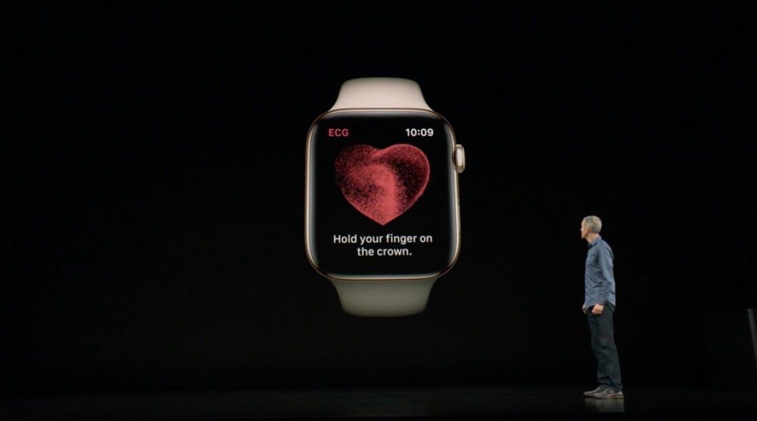 Was Kardiologen zur neuen EKG-Funktion der Apple Watch sagen