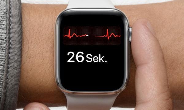 Neue Smartwatches von Samsung und Apple sollen Blutzucker messen können
