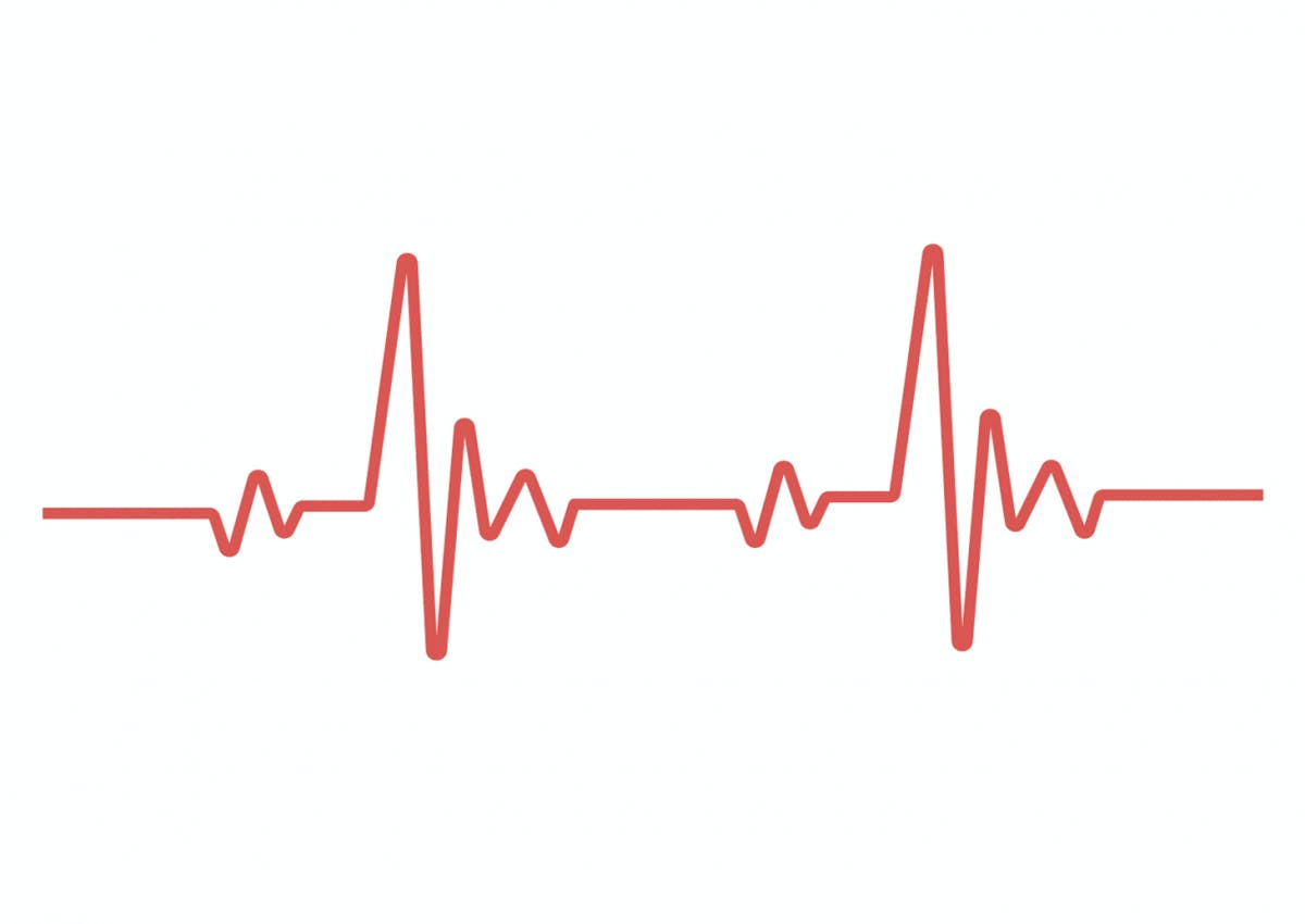 KI-Software RiskCardio ermittelt Herztod-Risiko aus einem einzigen EKG